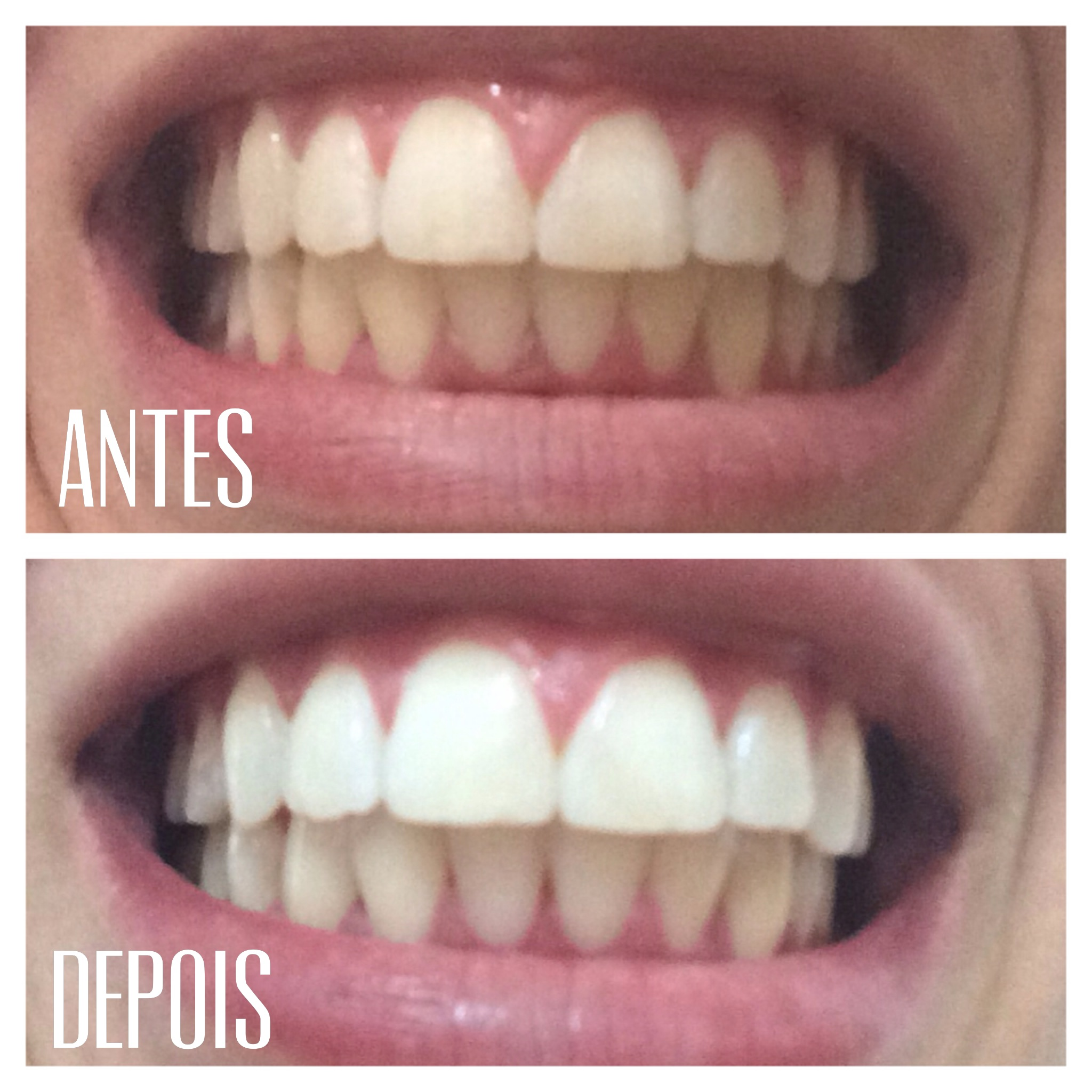 Resenha 3d White Whitestrips Da Oral B Eramos Dois